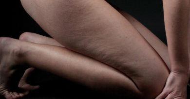 Cellulite: la nemica giurata delle donne